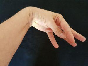 Handstellung bei einem Krampf aufgrund von Hypokalzämie.